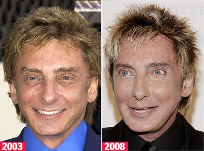 barry-manilow 400x297